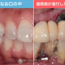 歯周病は気がつかない…