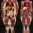 MRI撮影での体型比…