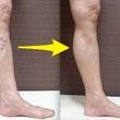 足のむくみ、つる症状…