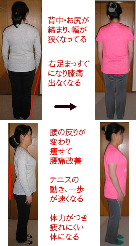 西東京市ひばりヶ丘駅の整体の膝に水がたまり膝痛、腰痛改善でテニスも上達