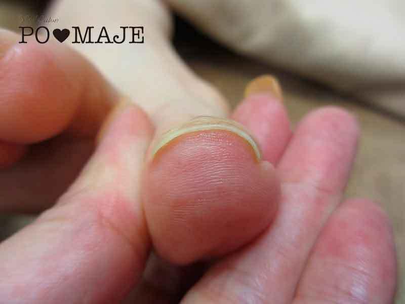 大阪巻き爪矯正bsブレイスクイックネイルサロン