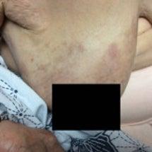 帯状疱疹(ヘルペス)…