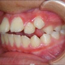 歯列矯正治療後の後戻…