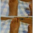 足のむくみにアロママ…