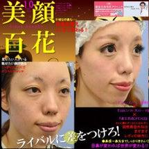★目鼻複合手術★ フ…