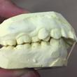 出っ歯の治療、上下の…