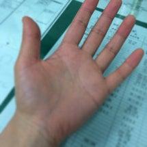 手が黄色くて悩んでい…
