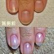【深爪改善】ピンクの…