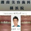 美歯師によるセラミッ…