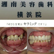 美歯師 北川によるセ…