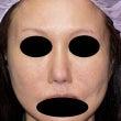 鼻孔縁挙上術 術後1…