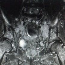 前立腺癌へクリシュナ…
