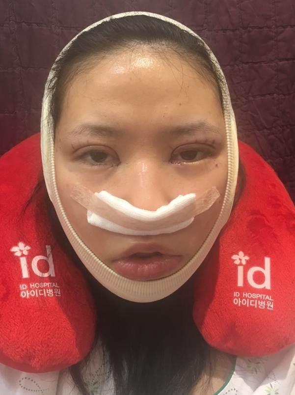 エミさん手術当日
