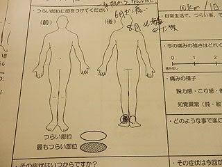 アキレス腱炎 アキレス腱の痛み アキレス腱が痛い
