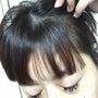 ★円形脱毛から1年半…