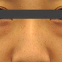 【若返り】目の下の切…