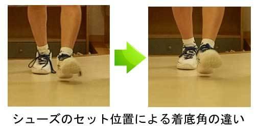 中学生 バスケットボール 膝の痛み 水がたまる