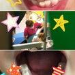 乳歯が抜けずに永久歯…