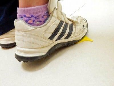 捻挫の原因 捻挫を治す バレーボール捻挫
