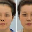 鼻中隔延長術+鼻孔上…