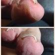 巻き爪の痛みから解放…