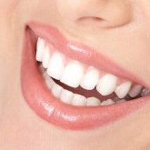 歯ならびのキモチ