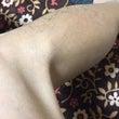 右膝負傷••••