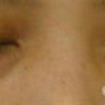 目の下のふくらみをと…