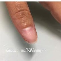 爪の補修できます♪.…