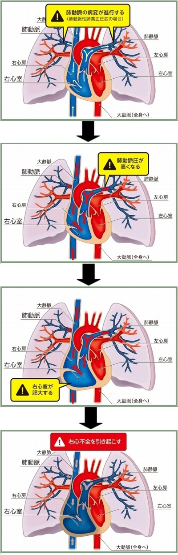 肺動脈性肺高血圧症のメカニズム