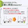 O脚→外反母趾→くつ…
