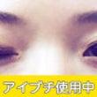 瞼の厚い方のお治療に…