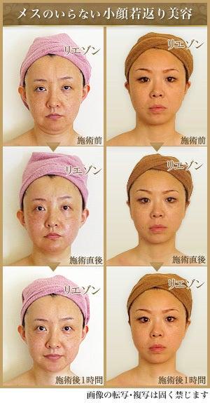 メスのいらない小顔若返り美容 画像の転写・複写は固く禁じます