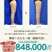 脂肪吸収ならライポマ…