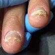 爪甲下角質増殖