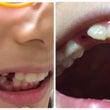 歯抜き名人の母!歯医…