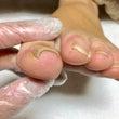 足の巻き爪の痛みは、…