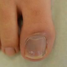 爪下血腫(爪の下の内…