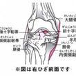 ☆ひざ後十字靭帯損傷…