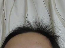 170205前髪