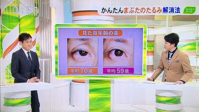 眼瞼下垂2