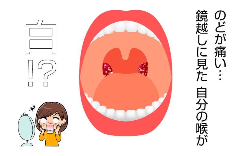 扁桃腺 どこ画像