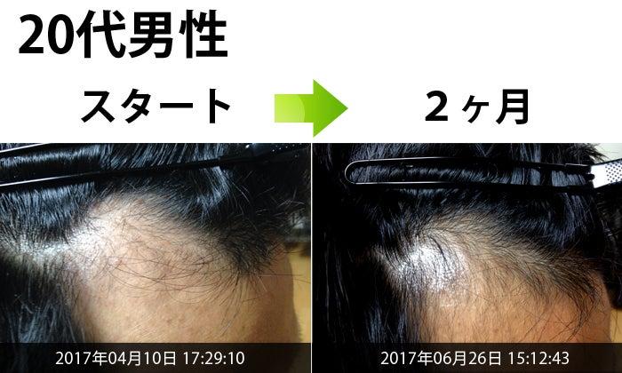 薄毛治療結果