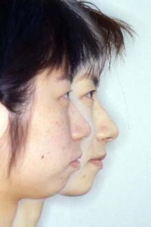 徳島の矯正歯科治療専門医院-横顔比較
