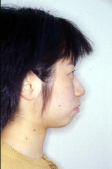 徳島の矯正歯科治療専門医院-初診時横顔