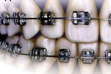 徳島の矯正歯科治療専門医院-金属