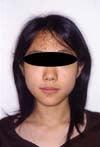 徳島の矯正歯科治療専門医院-術後正面顔