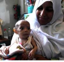 国際協力&情報 BLOG-GazaMalnutritionByIsraeli