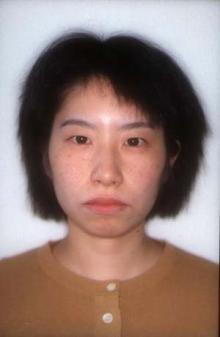 徳島の矯正歯科治療専門医院-術前正面顔