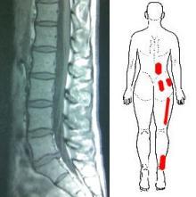 MRIと トリガーポイント